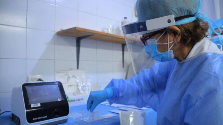 Yaracuy recibe nuevo equipo que acortatiempos de resultados en diagnóstico para Covid